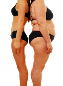 Thyroid Disease Treatment Mornington - Very thin woman and overweight lady comparing different body shapes